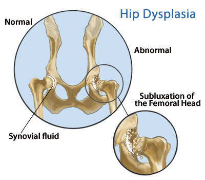 Canine Hip Dysplasia For Dogs Sake